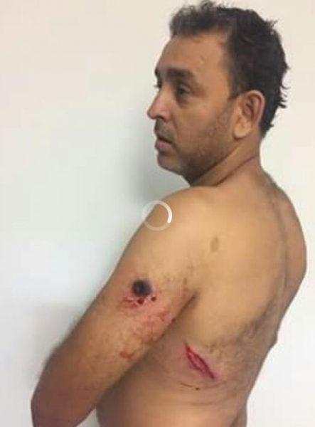 Candidato a vice-prefeito sofre tentativa de homicídio em Olho D'água das Cunhãs